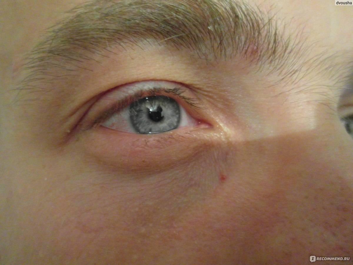 Болят глаза от сварки: что делать и чем лечить, причины боли