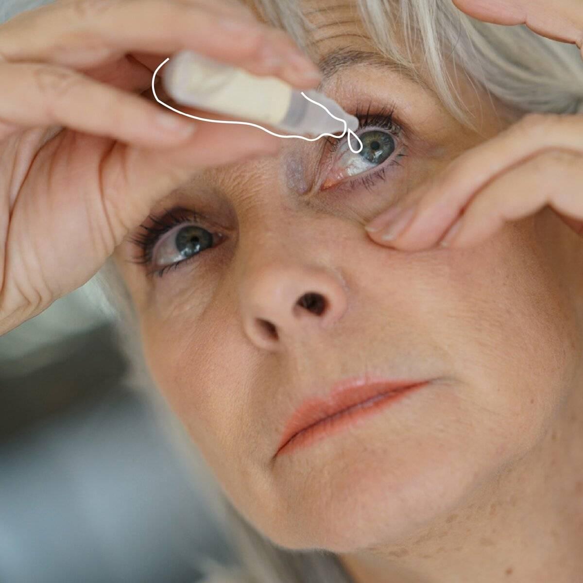 Лечение катаракты без операции реабилитация, профилактика, симптомы, по удалению, народными средствами, противопоказания