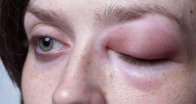 Как снять аллергический отек горла