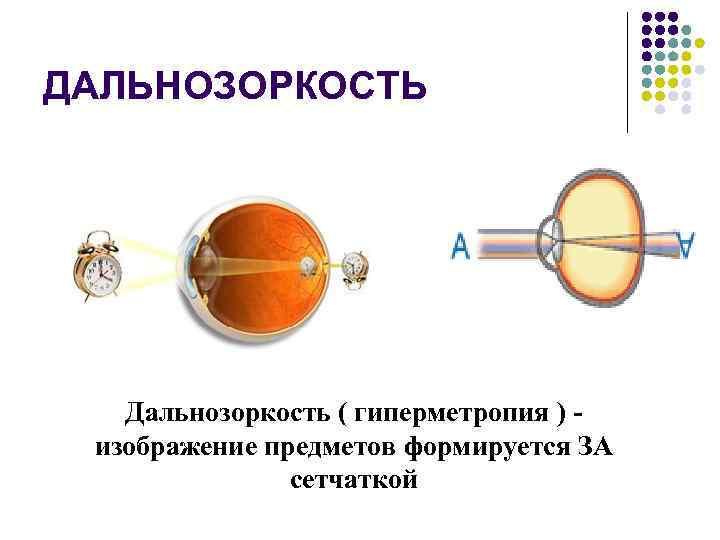 Гиперметропия у ребенка слабой, средней и высокой степени: лечение