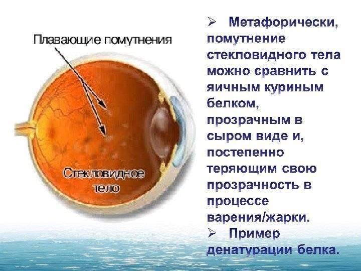 Деструкция стекловидного тела: что это такое, причины, симптомы, лечение (капли для глаз, витамины), формы, диагностика, осложнения, видео