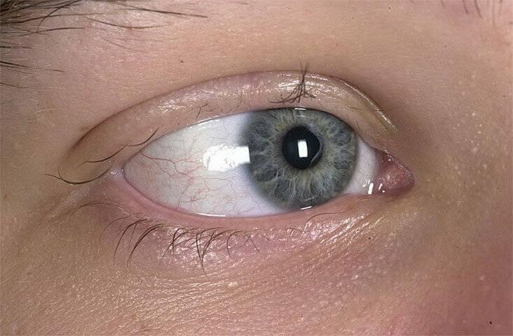 Мидриаз (расширение зрачка) — причины, симптомы и лечение