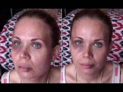 Как замаскировать синяки под глазами с помощью косметики? чем замазывают черные круги? лучшие косметические средства от темных пятен