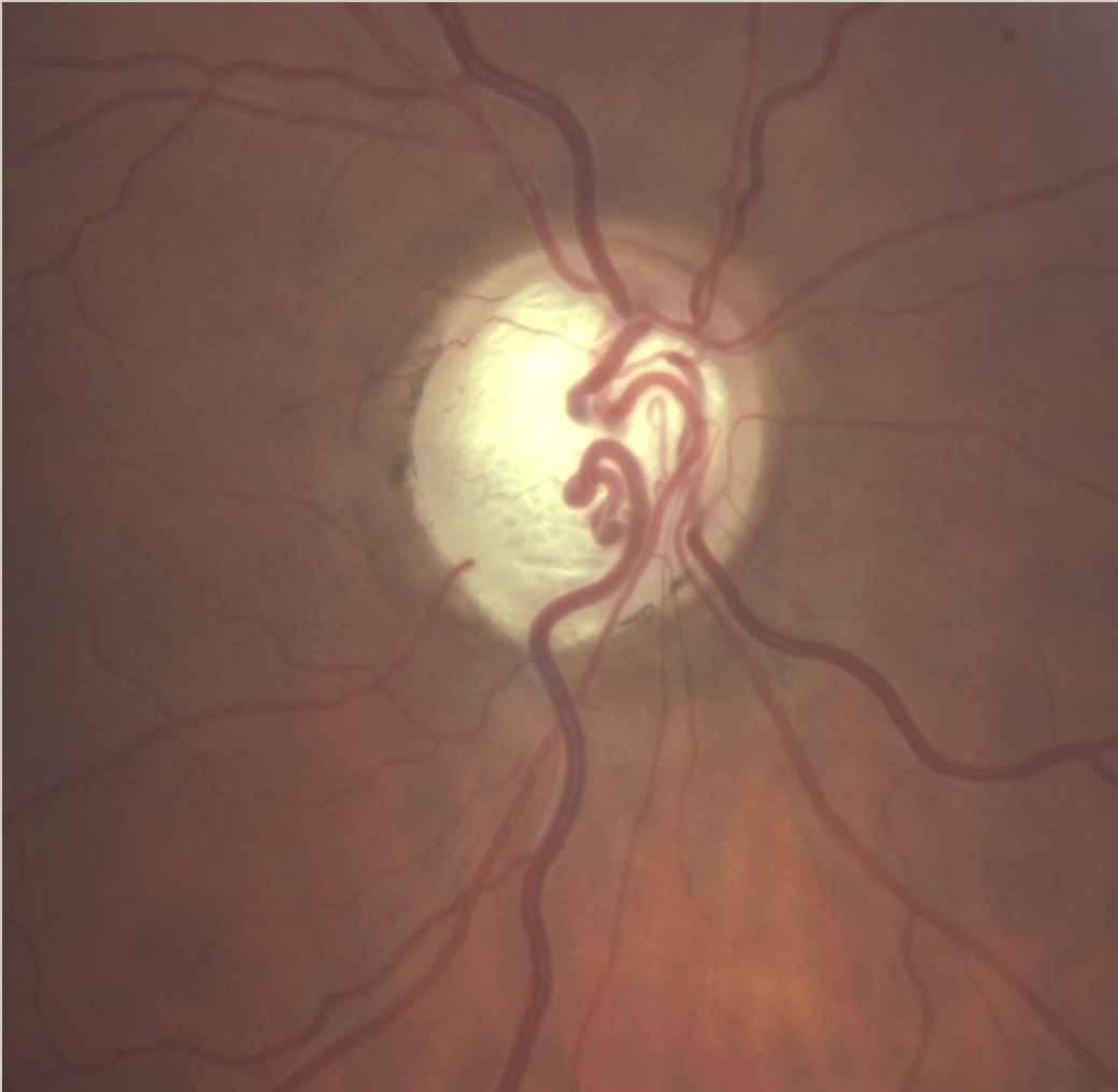 Колобома глаза: что это? лечение болезни