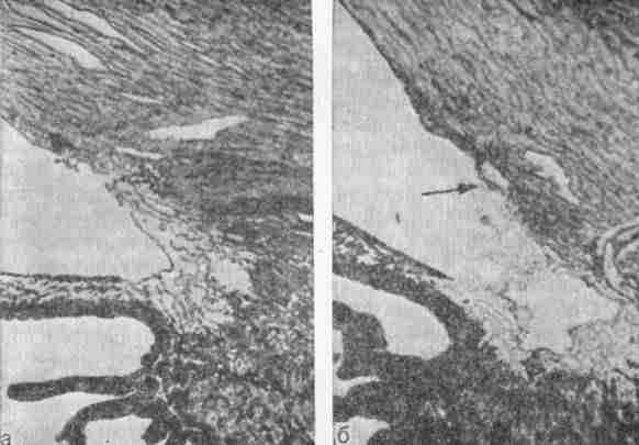 Фгау нмиц «мнтк «микрохирургия глаза»