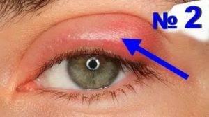 Можно ли греть ячмень на глазу - не станет ли хуже oculistic.ru можно ли греть ячмень на глазу - не станет ли хуже