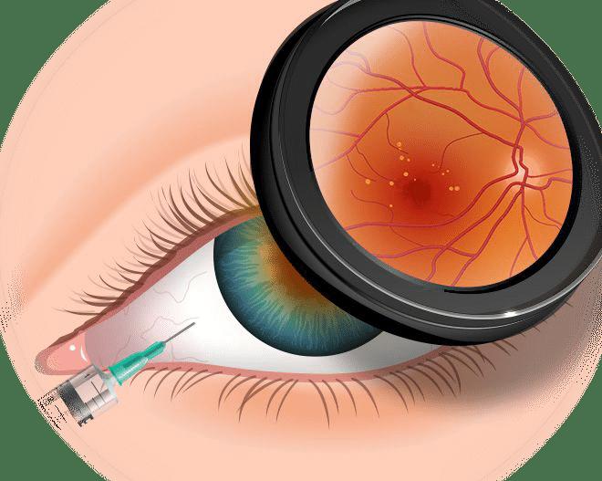Какие уколы в глаза при глаукоме - вылечимглаукому