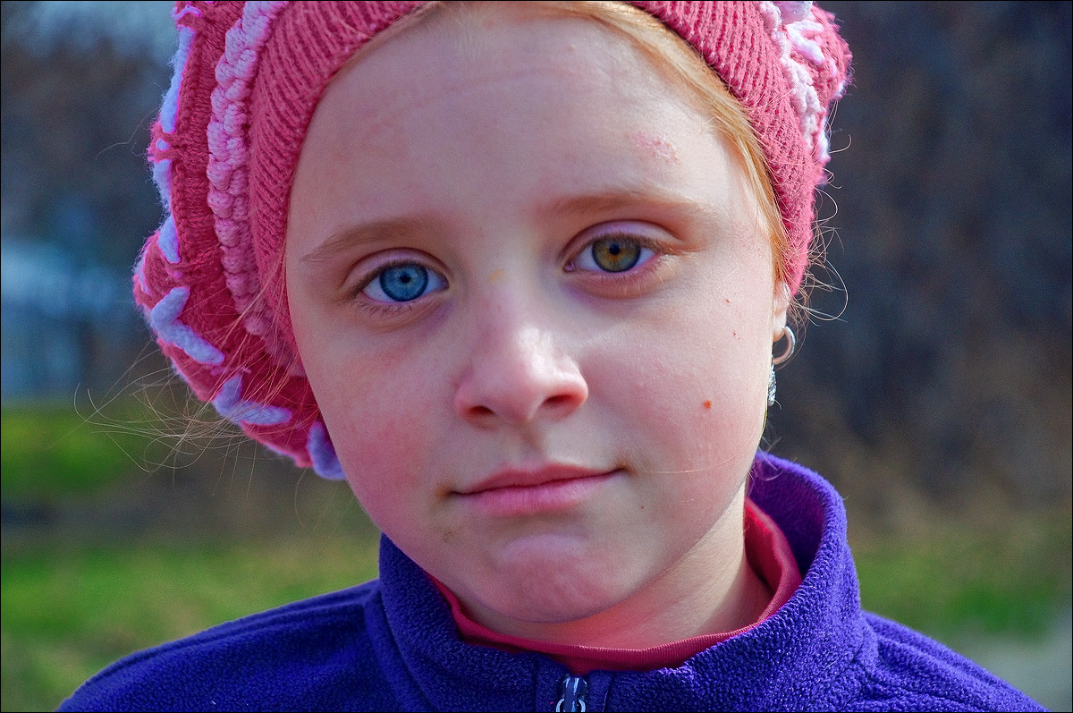Гетерохромия - глаза разного цвета