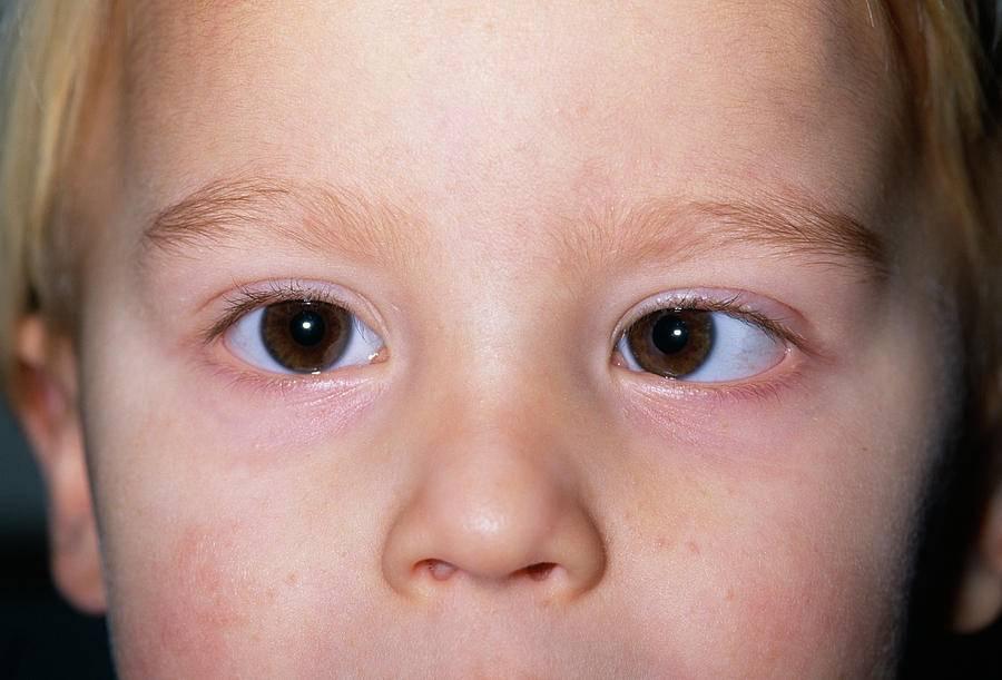 У ребенка разные зрачки по размеру – причины у новорожденного младенца