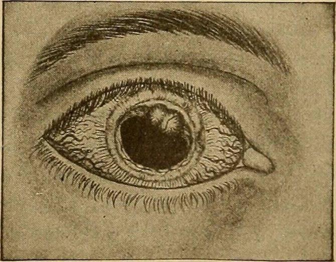 Когда нужен и как выполняется укол в глаз