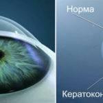 Коррекция зрения при тонкой роговице