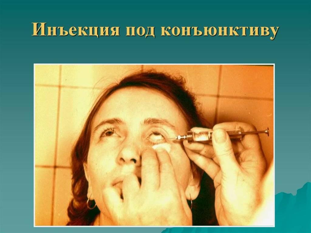 Субконъюнктивальные инъекции техника введения цена отзывы - медицинский справочник