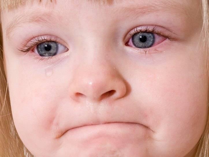 Ребенок жалуется болит голова и глаза - лечим сами