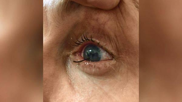 Как вытаскивают стружку из глаза в больнице. как легко и безопасно вытащить соринку или занозу из глаза