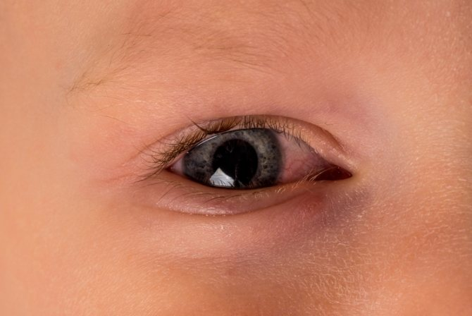 Гноятся глаза при простуде у ребенка
