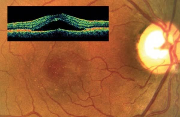 Центральная серозная хориоретинопатия (цсх)