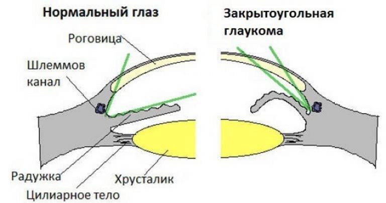 Закрытоугольная и открытоугольная глаукома – причины, симптомы и лечение