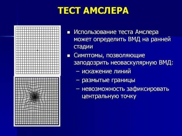 Тест амслера онлайн — что это такое, распечатать сетку (таблицу) и проверить сетчатку глаза на макулодистрофию