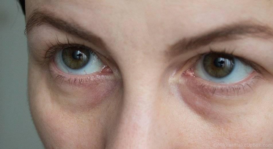 Синева вокруг глаз у взрослого. синяки под глазами: возможные причины появления