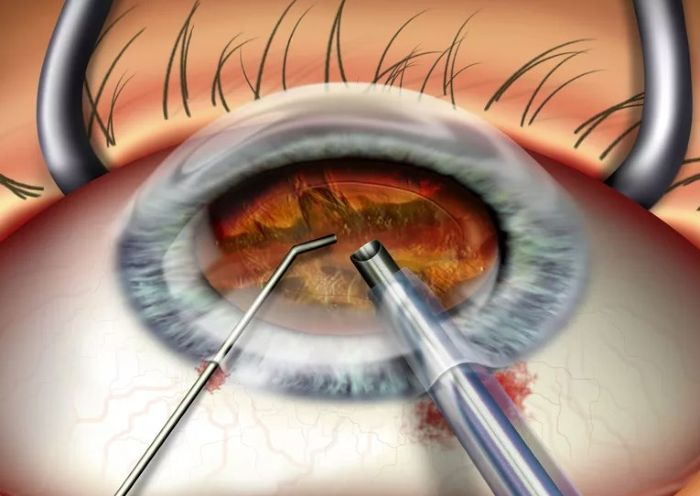 Послеоперационный период после замены хрусталика глаза при катаракте oculistic.ru послеоперационный период после замены хрусталика глаза при катаракте