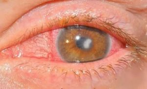 Увеит глаза: симптомы, фото, лечение. как лечить увеит