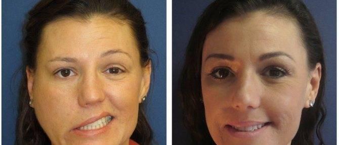 Восстановление зрения после инсульта: как вылечить потерю