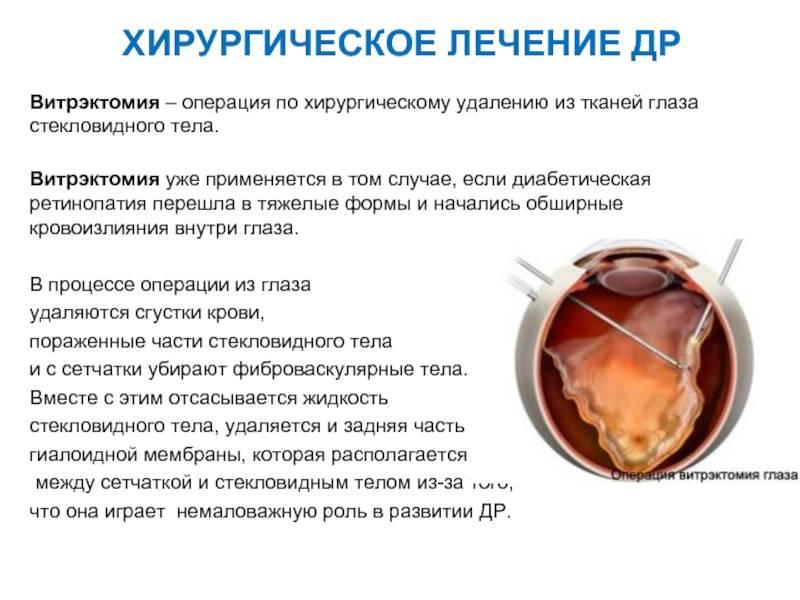 Микроивазивная витрэктомия - операция на глаза. клиники и витреоретинальные хирурги, отзывы и цены.