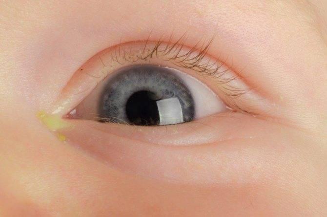 Почему у ребенка слезится глаз?