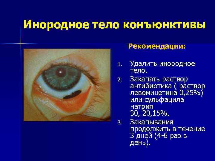 Повреждения глаз. механические травмы, ожоги.