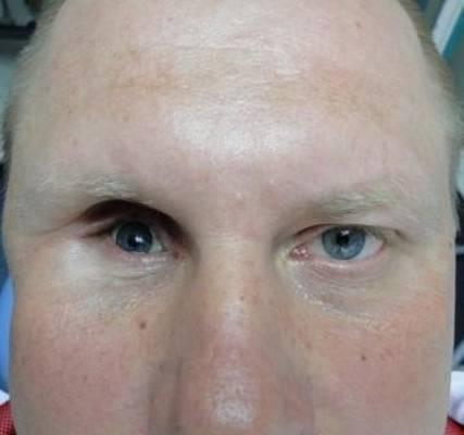 Эвисцерация глазного яблока: показания и противопоказания, ход операции, преимущества и недостатки