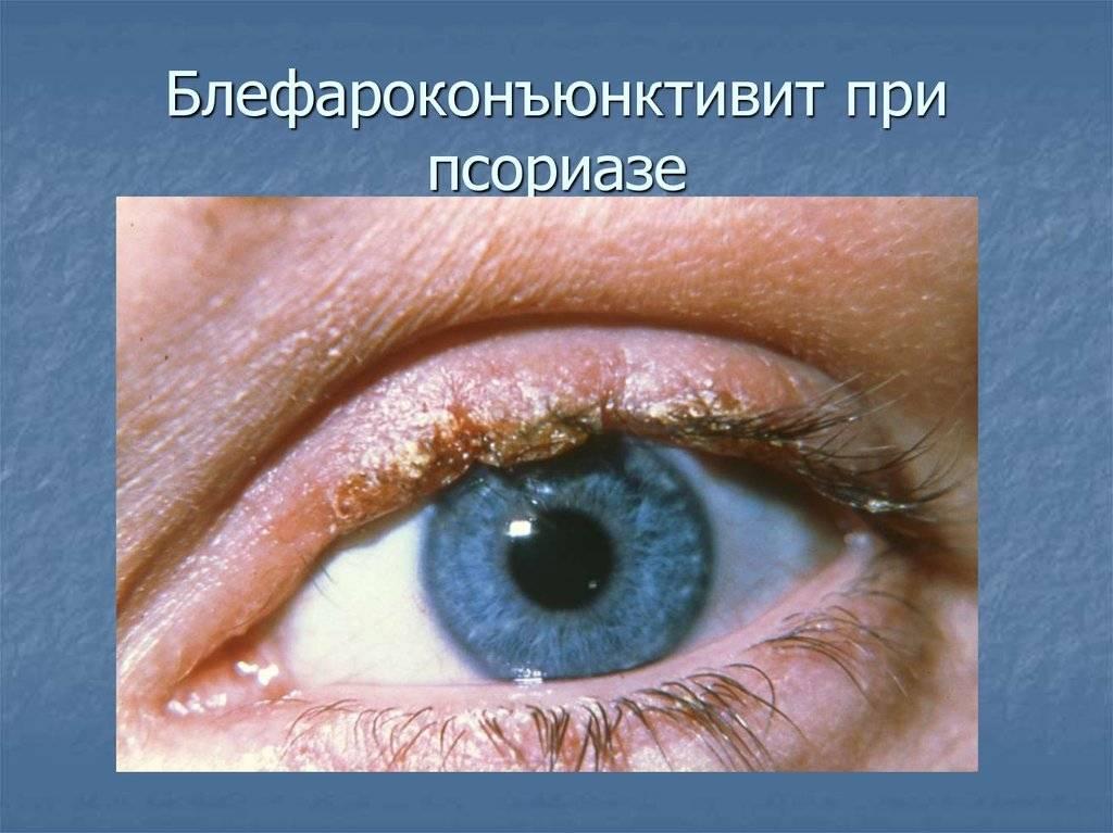 Блефароконъюнктивит причины, симптомы, методы лечения