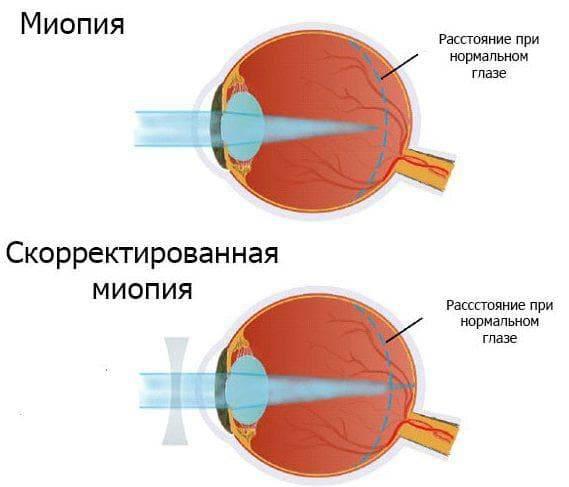 Миопия средней степени: причины, симптомы и современное лечение