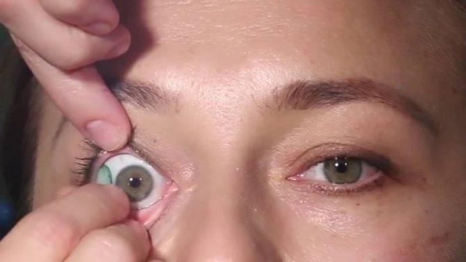 Что делать если линза потерялась в глазу? - color lens⠀⠀