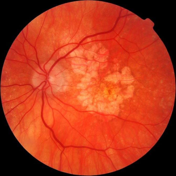 """Макулярный отек сетчатки глаза - причины, диагностика и лечение  - moscoweyes.ru - сайт офтальмологического центра """"мгк-диагностик"""""""