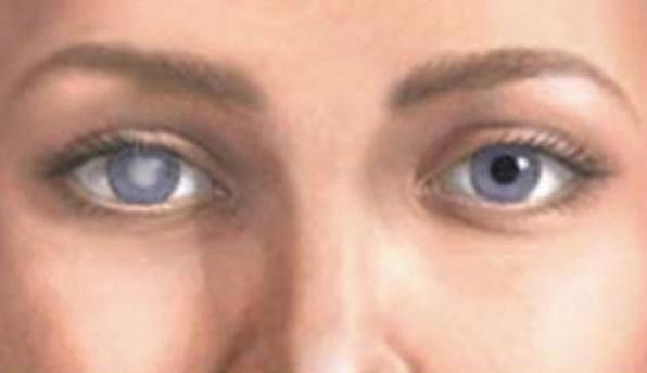 Невероятные способности слепых людей :: инфониак