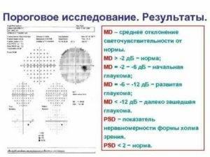 Компьютерная периметрия: что за исследование, показания, методика проведения