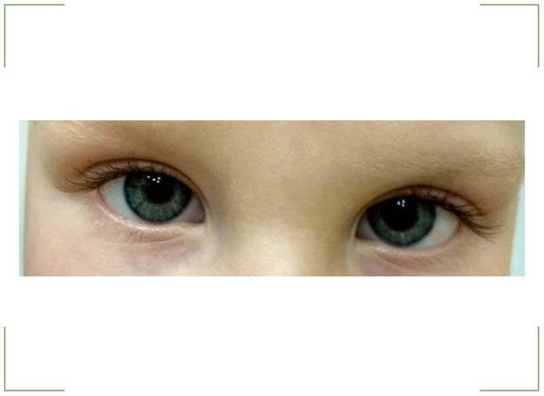 Зрачки разного размера (анизокория): причины и лечение у детей и взрослых