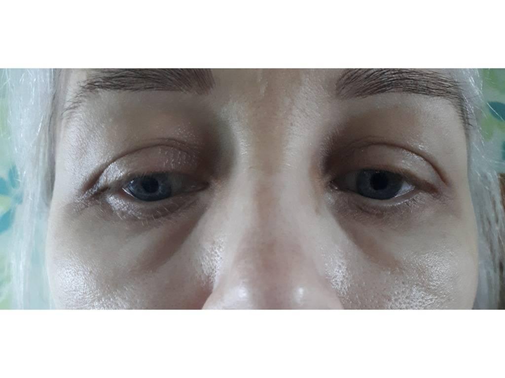 Отеки глаз после слез. почему появляются и как избавиться |