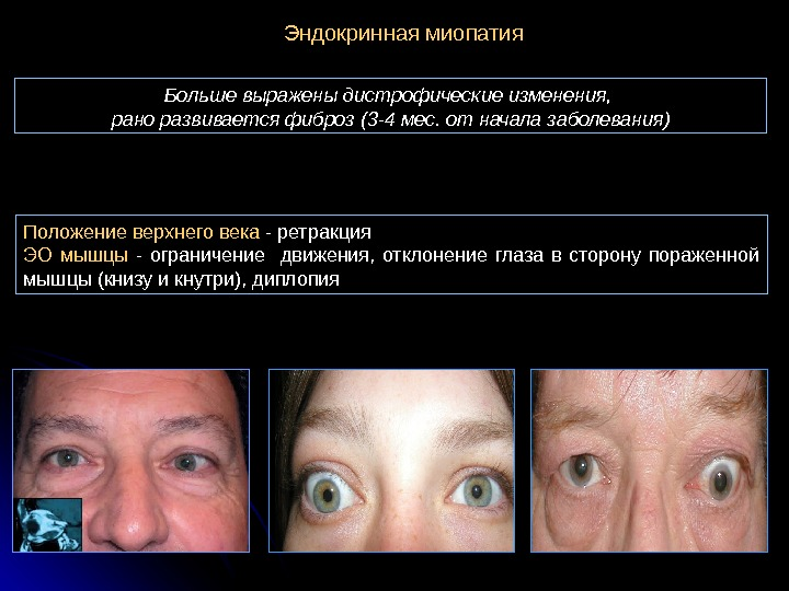 Миопатия глаз — что это такое? характеристика, симптомы и лечение миопии глаз