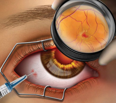 Yag-лазерный витреолизис - метод лечения деструкции стекловидного тела