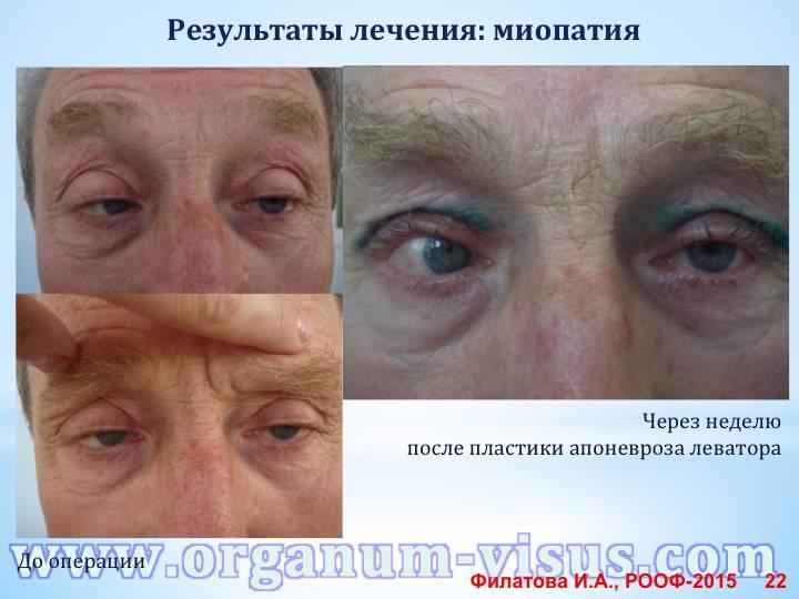 Миопия глаз: причина заболевания, лечение и восстановление