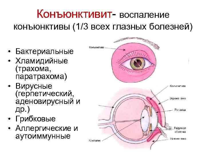 Хемоз конъюнктивы