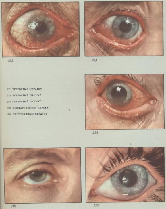 Кератит острый - что это такое, причины, симптомы и лечение