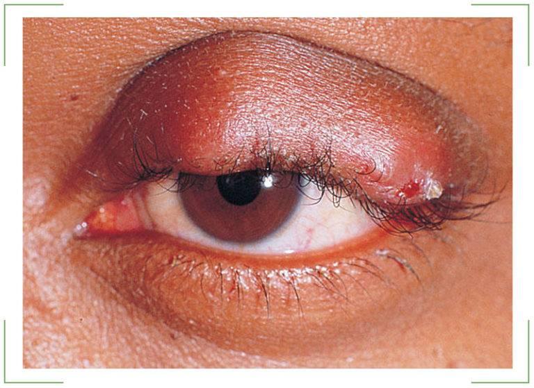 Как распознать и правильно лечить гнойник на веке глаза?