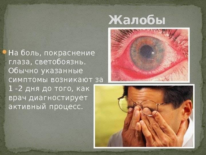 Светобоязнь глаз: причины, лечение фотофобии