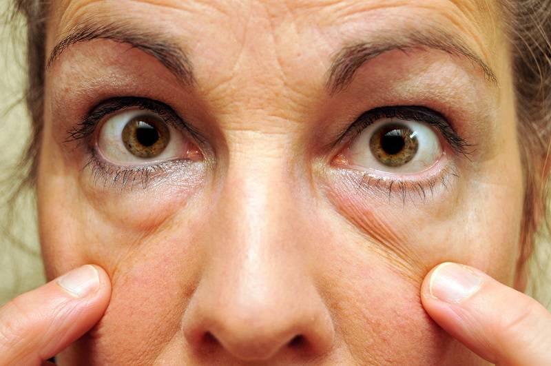 Как убрать темные круги под глазами (черные, синие, фиолетовые)