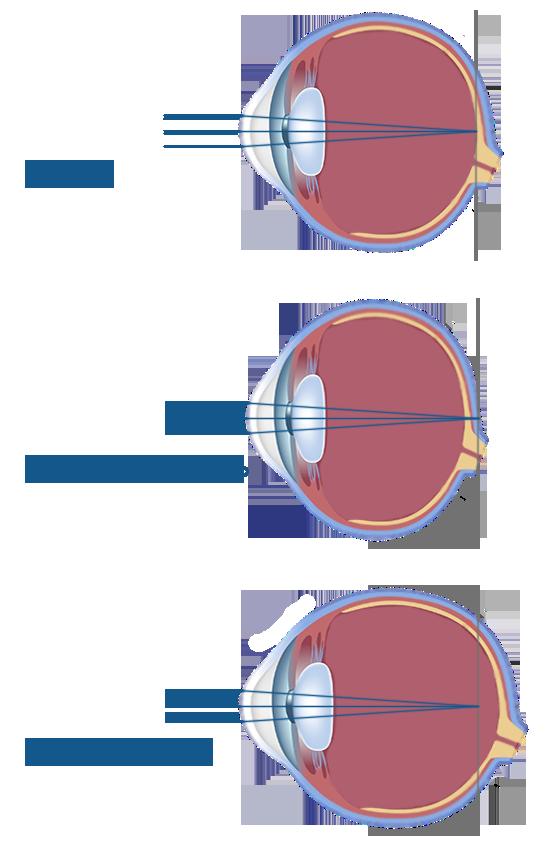 Близорукость глаз (миопия): что это такое, минус или плюс, лечение, причины, симптомы