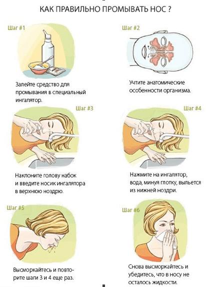 Промывание глаз: показания, подготовка, правила проведения