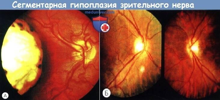 Колобома глаза (века, хрусталика, диска зрительного нерва, сосудистой оболочки, хориодеи, сетчатки): причины, симптомы, лечение, врожденная и приобретенная формы