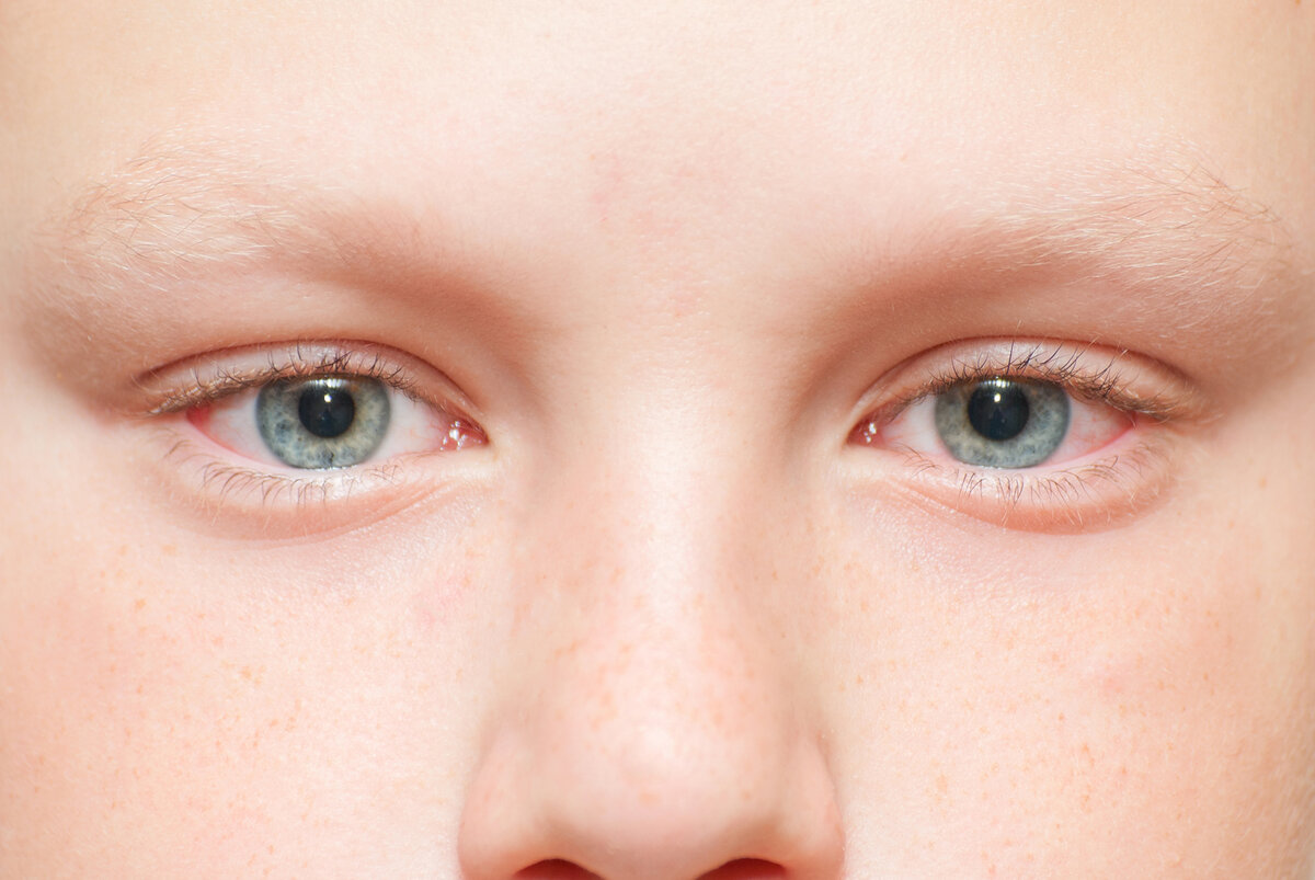 Почему дети и взрослые часто моргают глазами